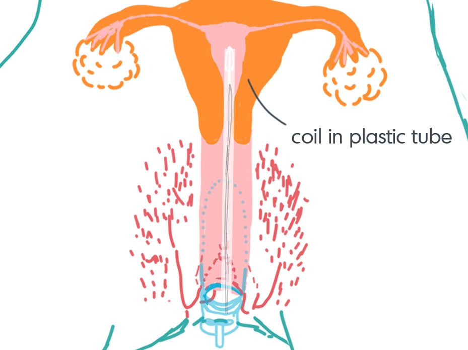 IUD_insertion01.jpg