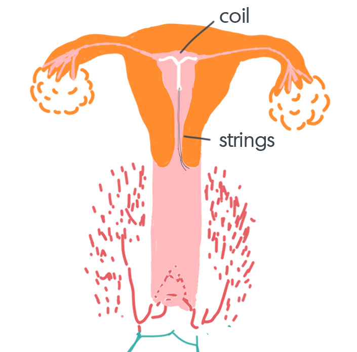IUD_insertion02.jpg