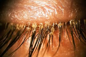 A close up Blepharitis – an infection caused by poor hygiene.