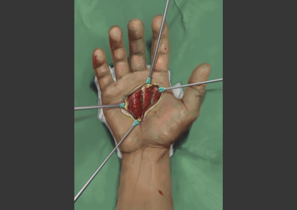 02_hand_surgery.jpg