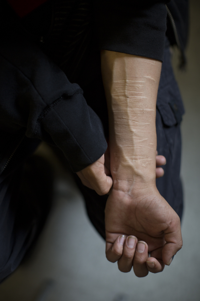Scars on an arm Scars on the arm of a young man in Fort Albany who has struggled with issues such as self-harm.