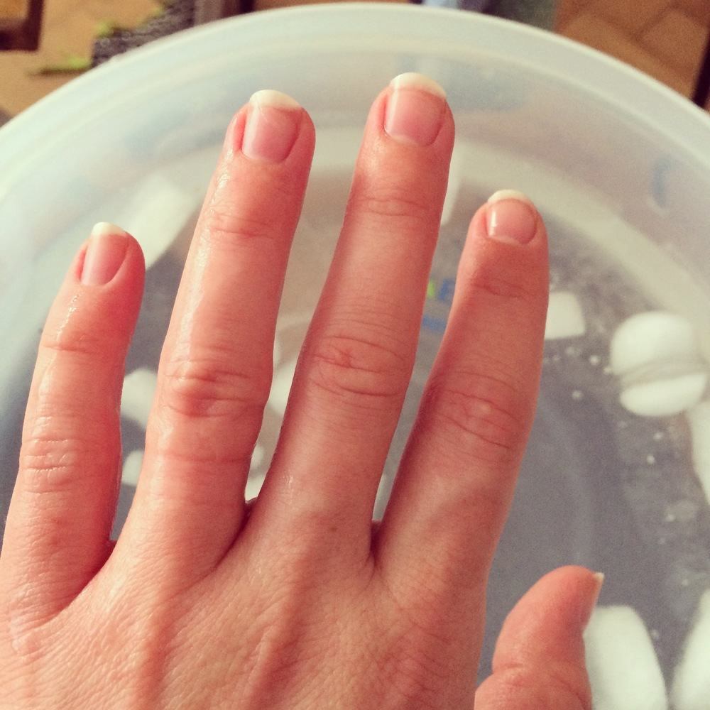 My wedding ring got stuck so I had to emerge my hand in ice cold water to reduce swelling before Nick yanked it off - ouch..