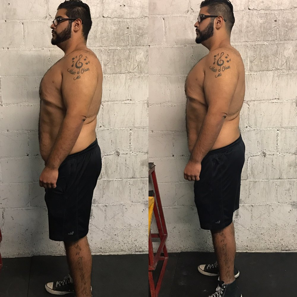 Tony Sanchez's 1 month progress. L-R, 11/2/16, and 12/6/16