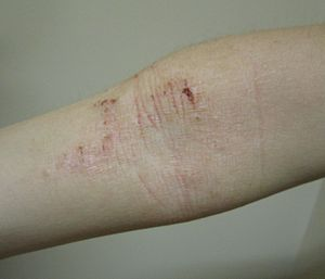 Atopic Dermatitis -