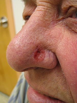 Basal Cell Carcinoma -