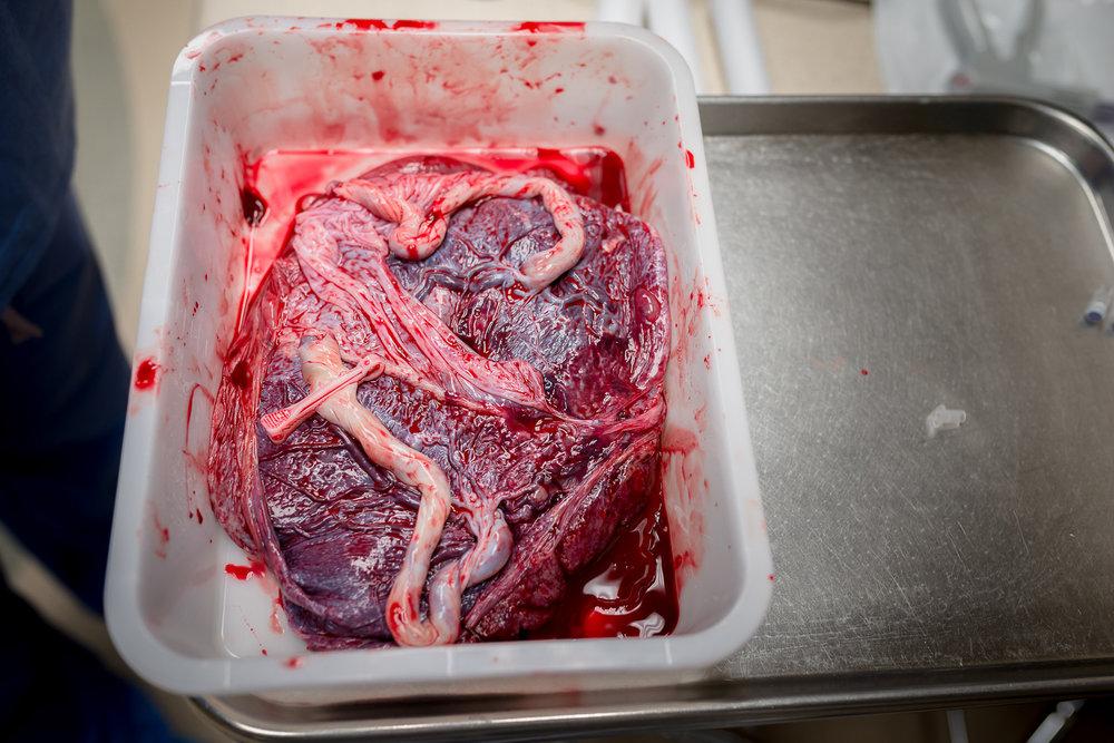 twin-placenta