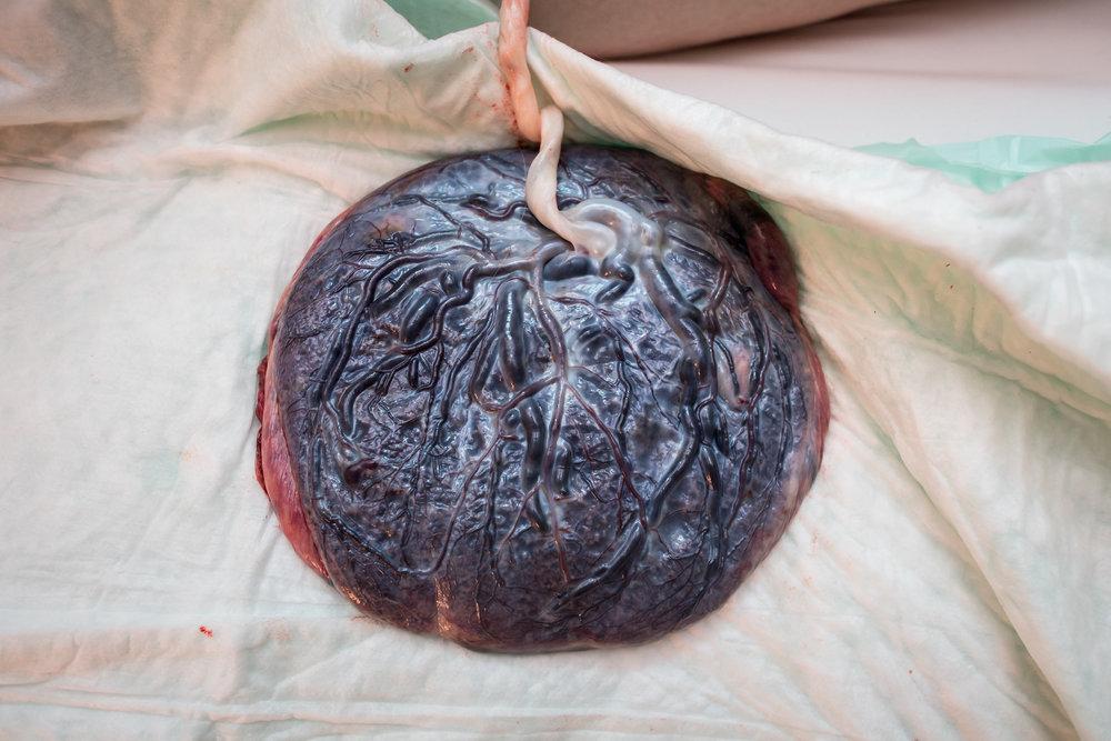 beautiful-placenta