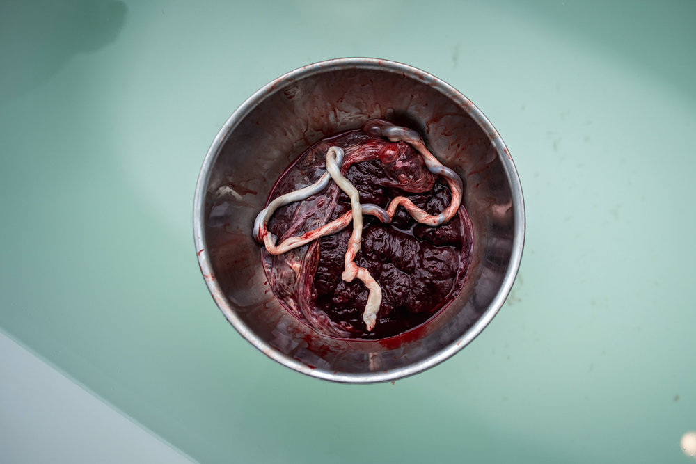 placenta floating in water