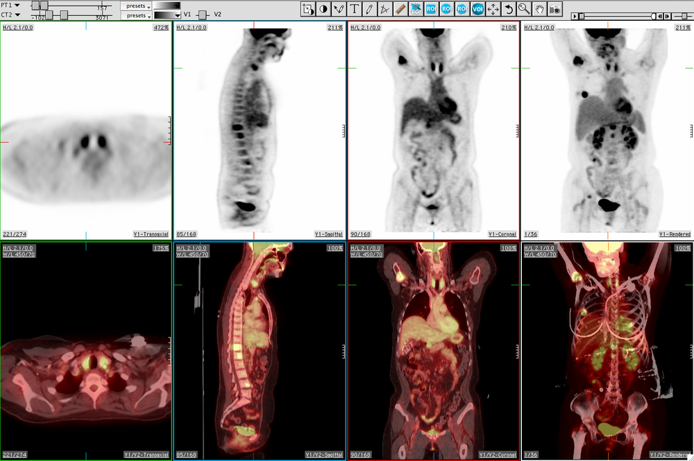MedView PET/CT scan