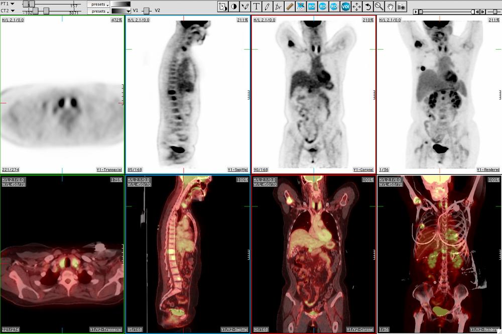 MedView PET/CT scan