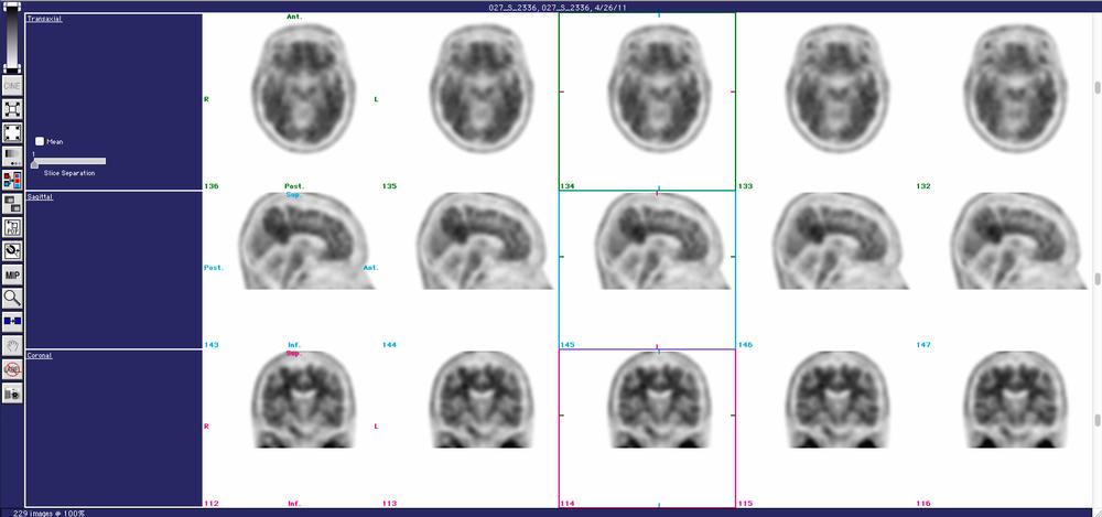 MedView Brain scan