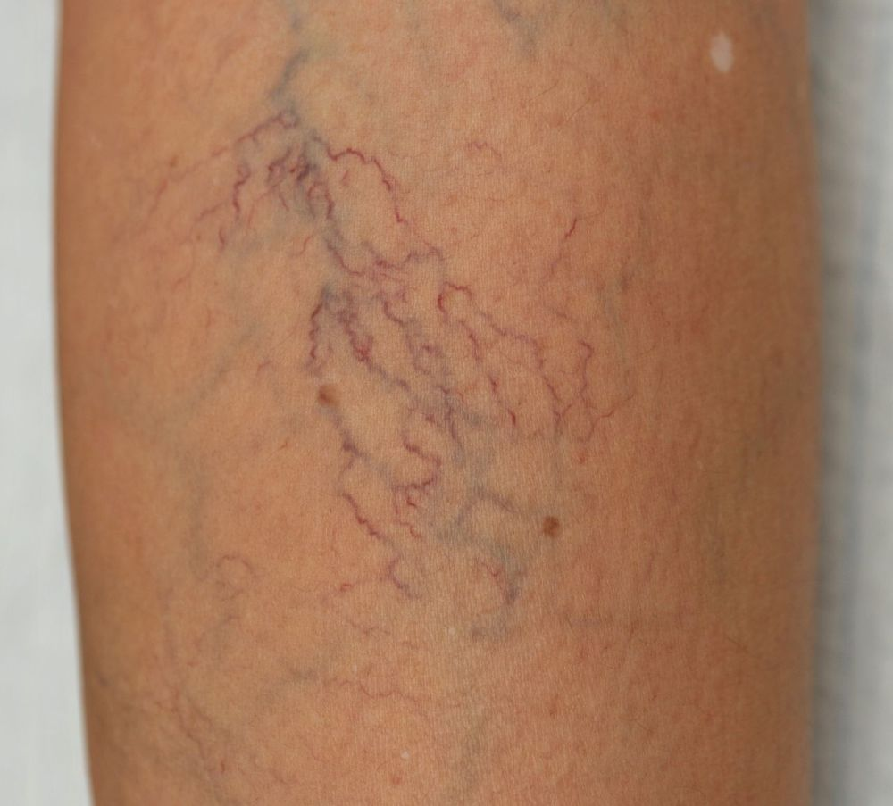 reticular varicose veins