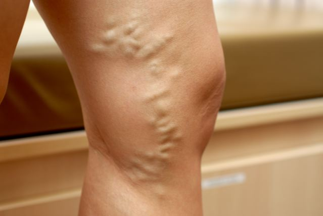 varicose-veins-01-before.jpg