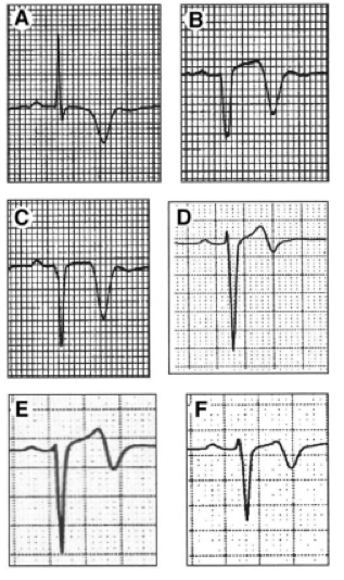 Rhinehardt J, Brady W, Perron A, Mattu A. Electrocardiographic Manifestations of Wellens' Syndrome. American Journal of Emergency Medicine. Nov 2002; 20(7):638-43.
