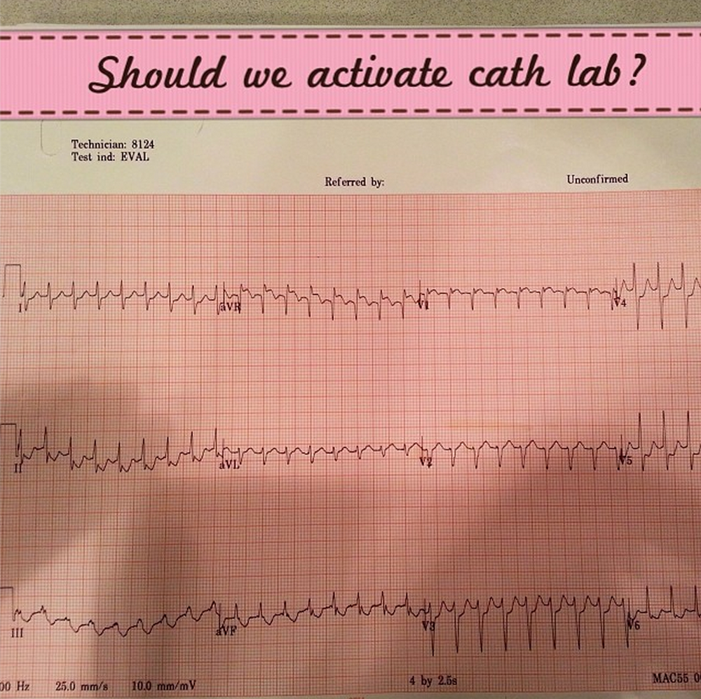 Middle aged M with multiple CAD risk factors p/w chest pain. What's next?