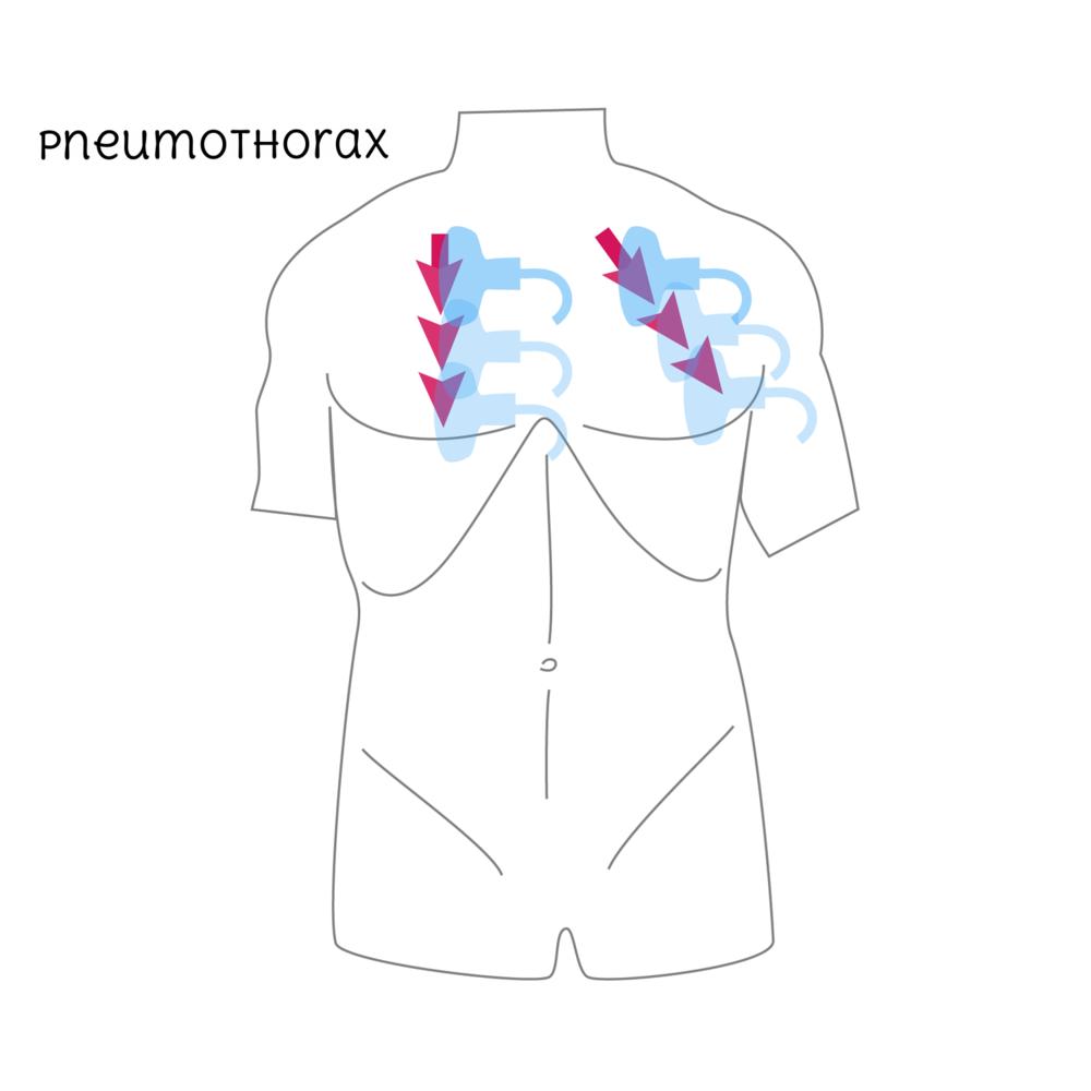 Pneumothorax-01-01.png