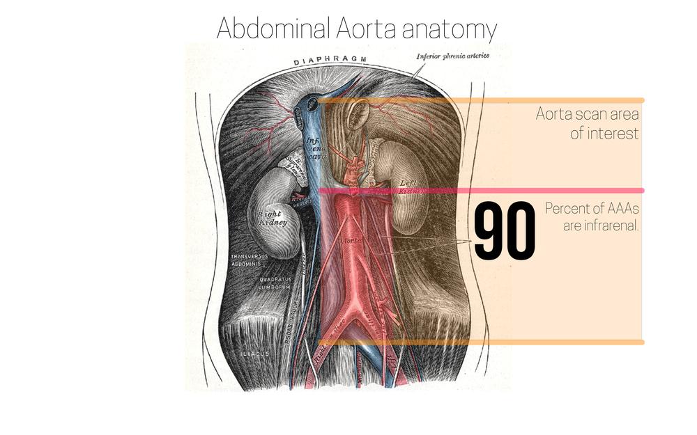 ultrasound leadership academy  aortic ultrasound  u2014 em curious