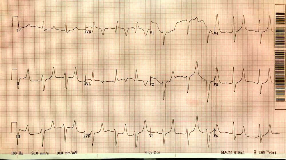 Diabetic with abdominal pain and nausea after forgetting to take insulin for several days.