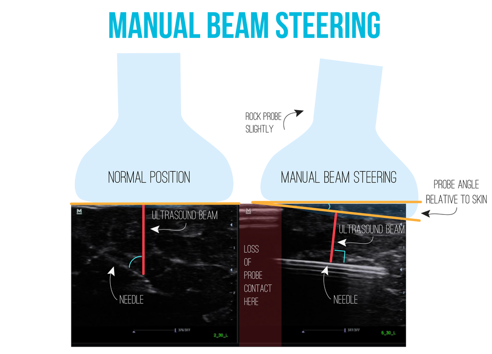 You can increase the signal from your needle (it will appear brighter) by performing  manual beam steering . This technique involves tilting the probe over the area of interest to make the ultrasound beams  approach being perpendicular to the needle and increasing signal as seen above.