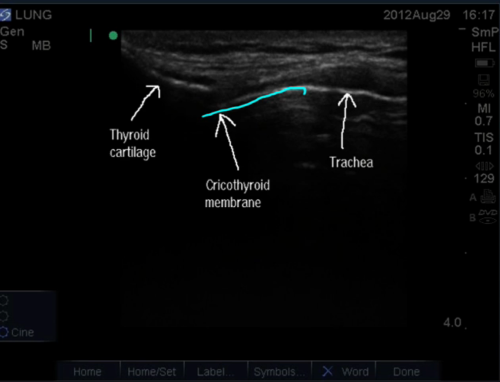 Sagittal view of the cricothyroid membrane from Ultrasound Leadership Academy.