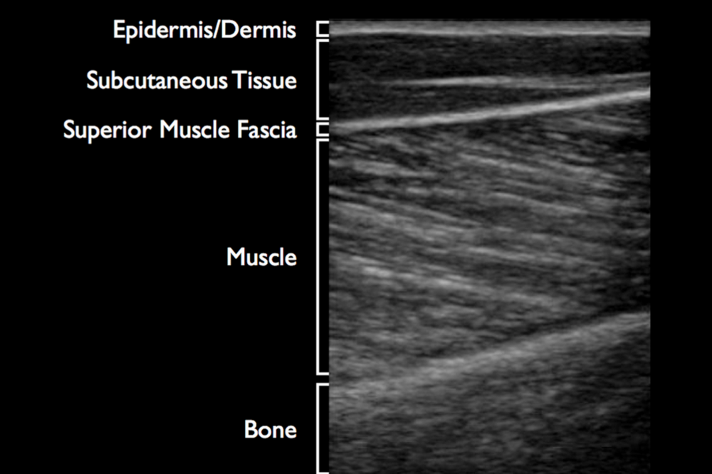 Musculoskeletal Ultrasound Anatomy And Technique Gallery Human