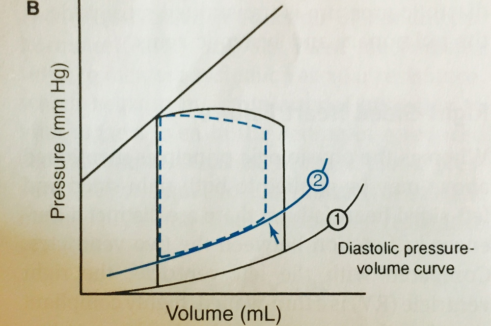 In diastolic heart failure, the pressure at any specific diastolic volume is increased, shifting the LV compliance curve upward. The far right of each loop represents LV end diastolic volume (volume in LV right before systole) and the blue arrow demonstrates that this volume is reduced as a result of a stiffened or poorly relaxing LV. From Pathophysiology of Heart Disease