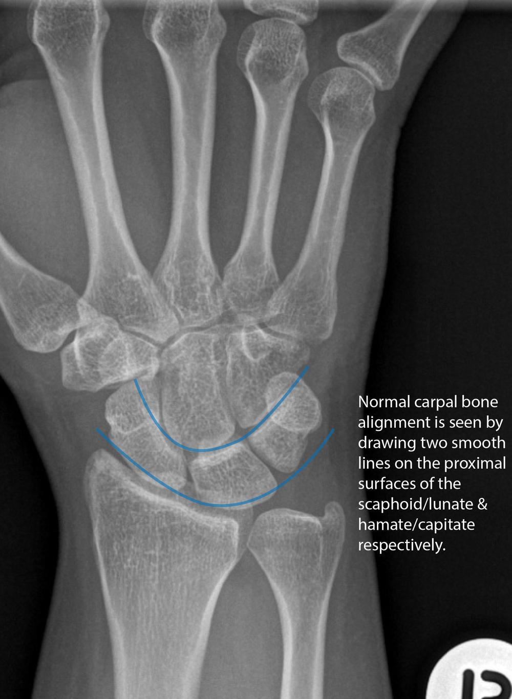 Normal Carpal Bone Contour on AP Radiograph