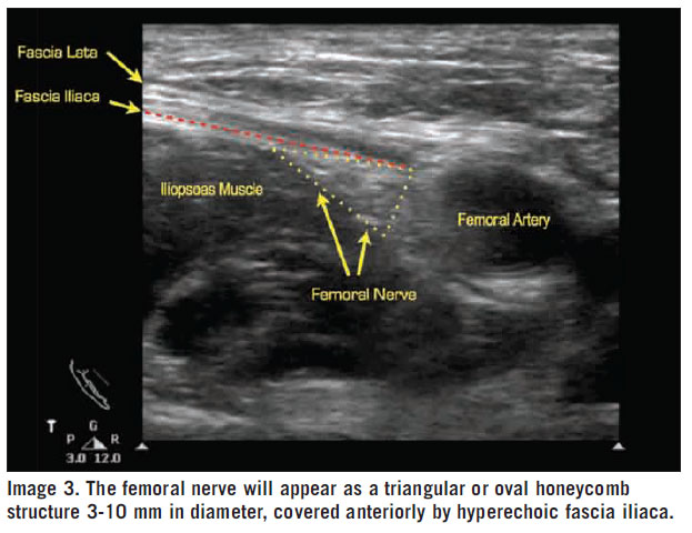 the femoral nerve block — em curious, Muscles