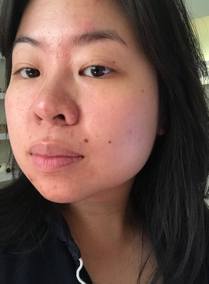 Day 2 of the five step routine with Saranghae. Stay tuned for day 30! #nomakeup #nofilter excuse my hormonal acne!