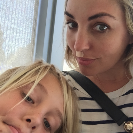 two freckle faces- post dermatologist for mom