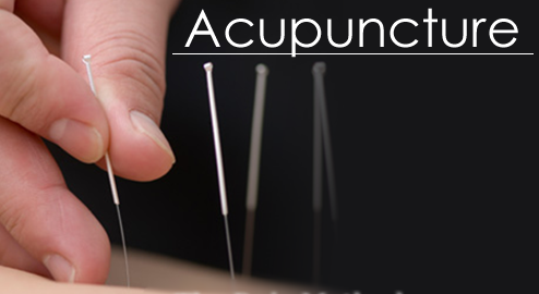acupuncture w text.png