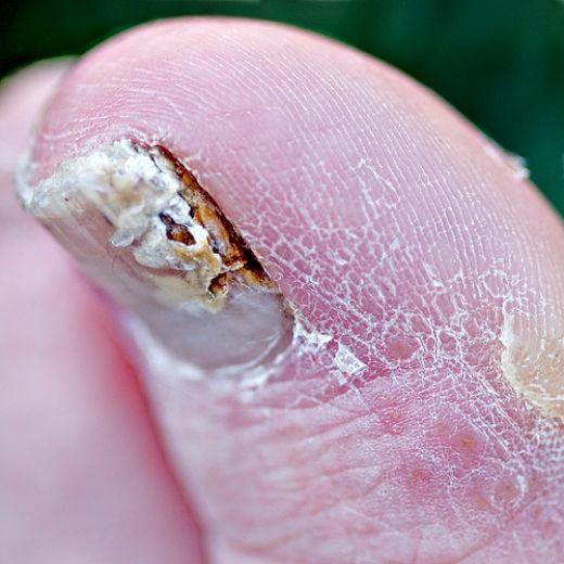 gel manicure fungus