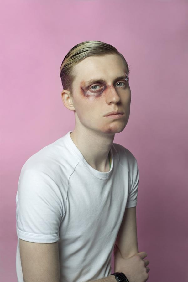 Lawrence bruisedsm.jpg