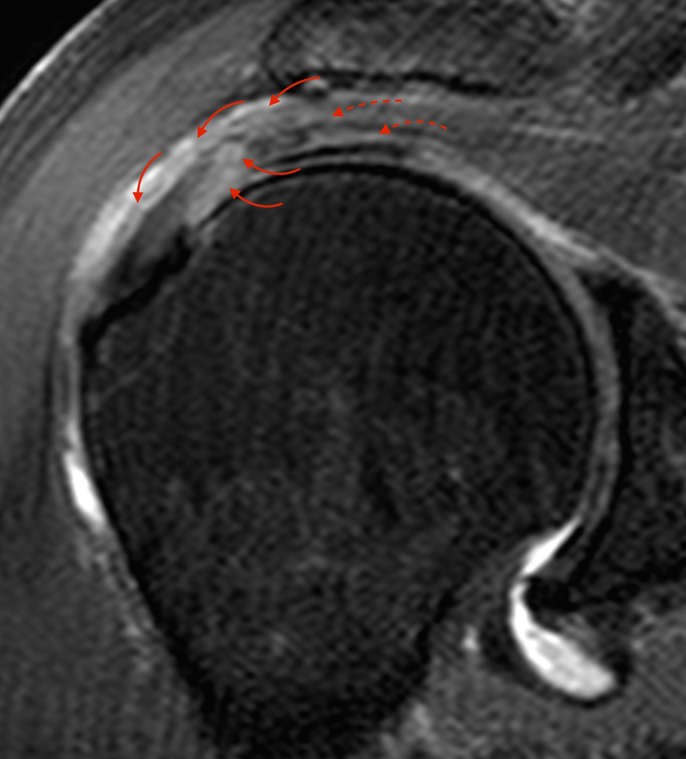 Nice Shoulder Anatomy Mri Collection - Anatomy and Physiology Tissue ...