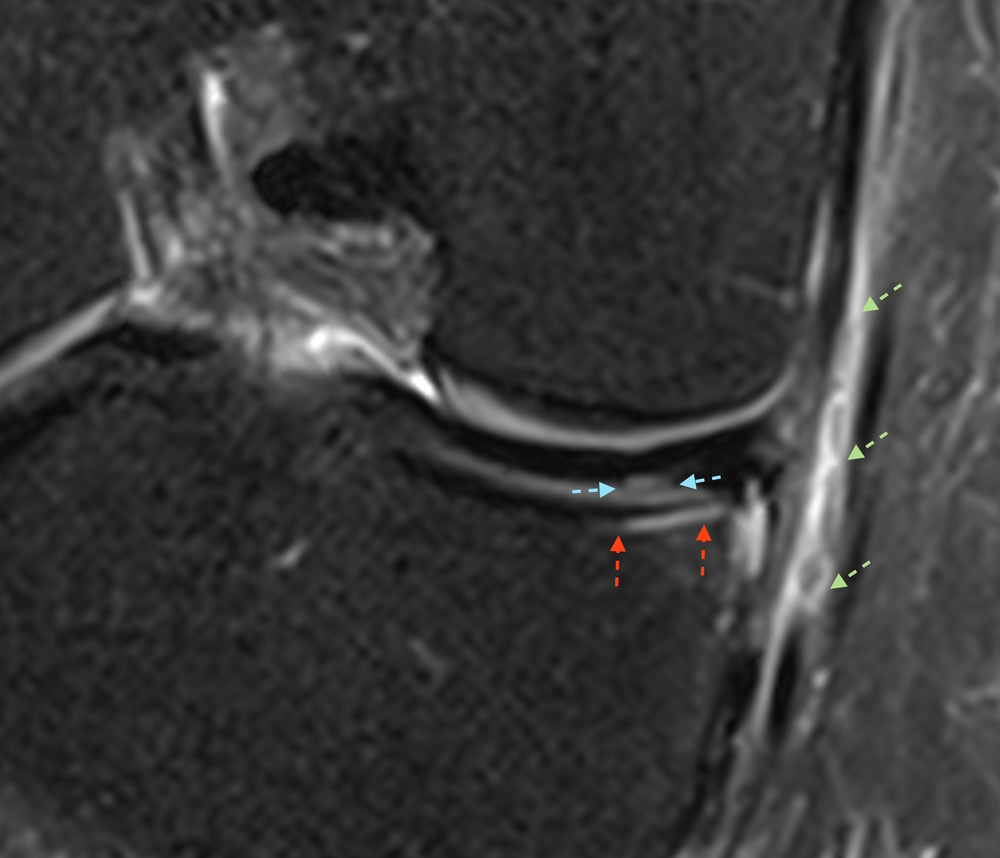 Knee Coronal MRI shows mirror image under surface medial meniscus tear ...