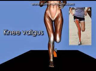 knee-valgus.jpg