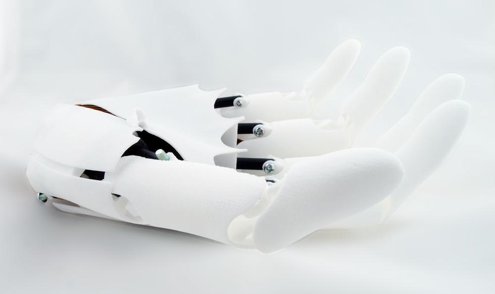 Youbionic Hand 05.jpg