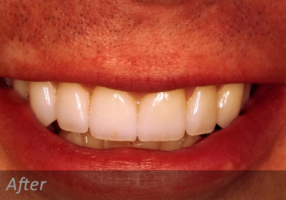 NW Dental - 041-2.jpg