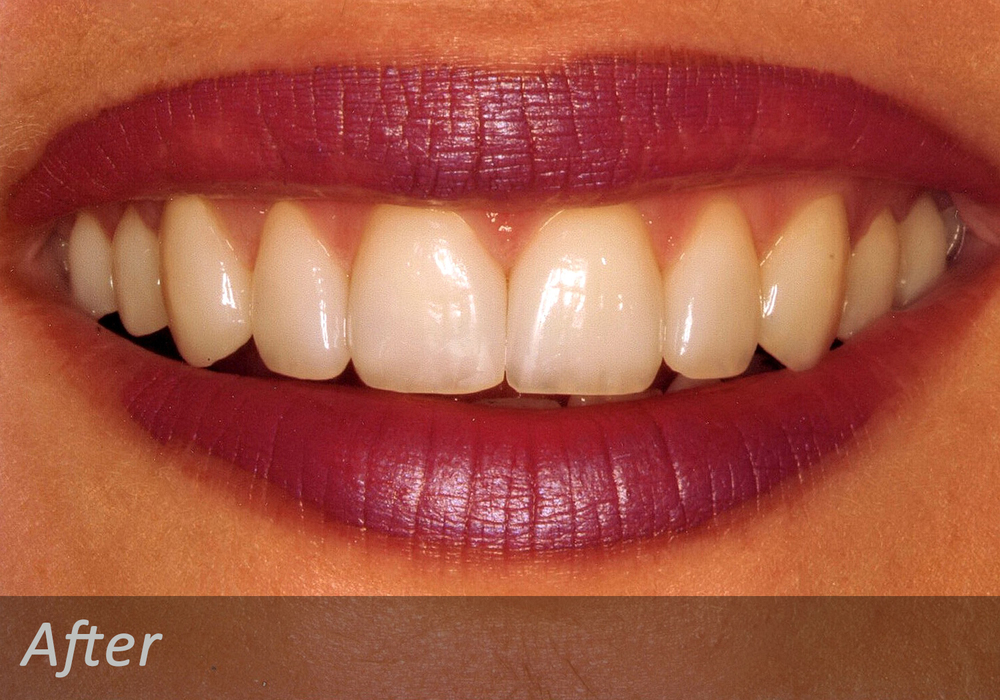 NW Dental - 040-1.jpg
