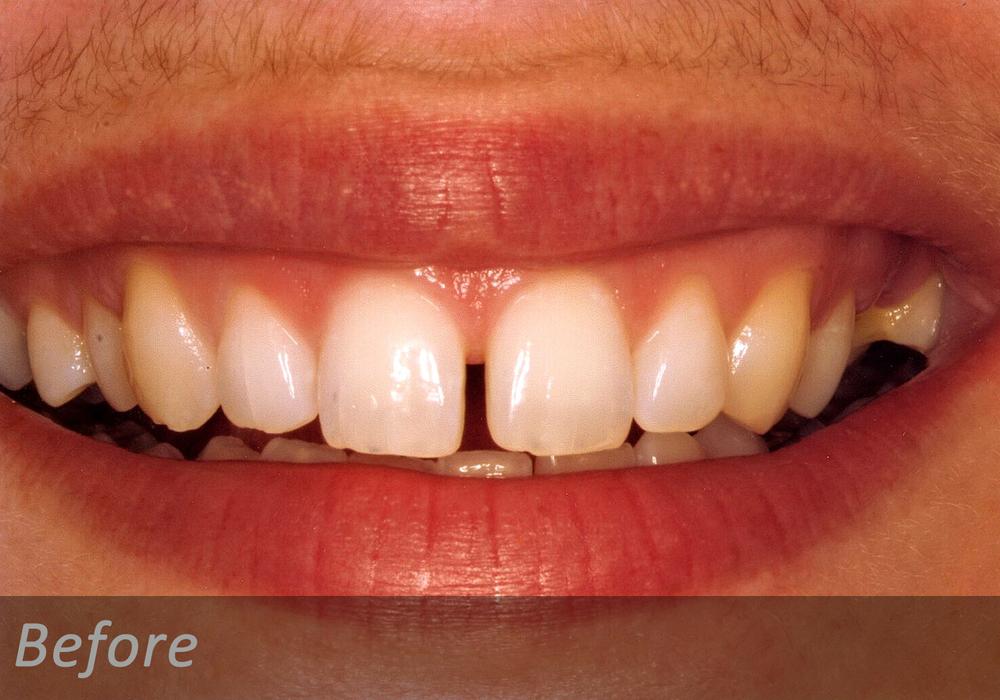 NW Dental - 040-3.jpg