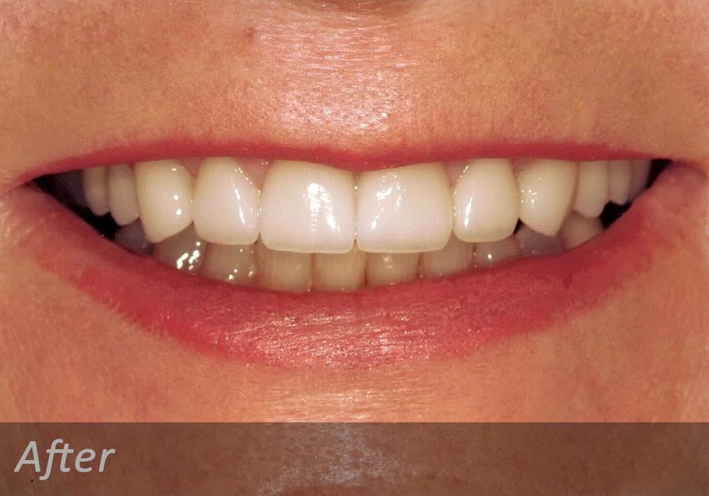 NW Dental - 042-4.jpg