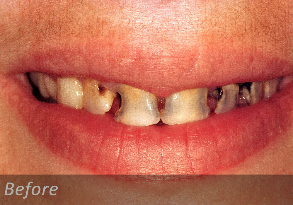 NW Dental - 044-2.jpg