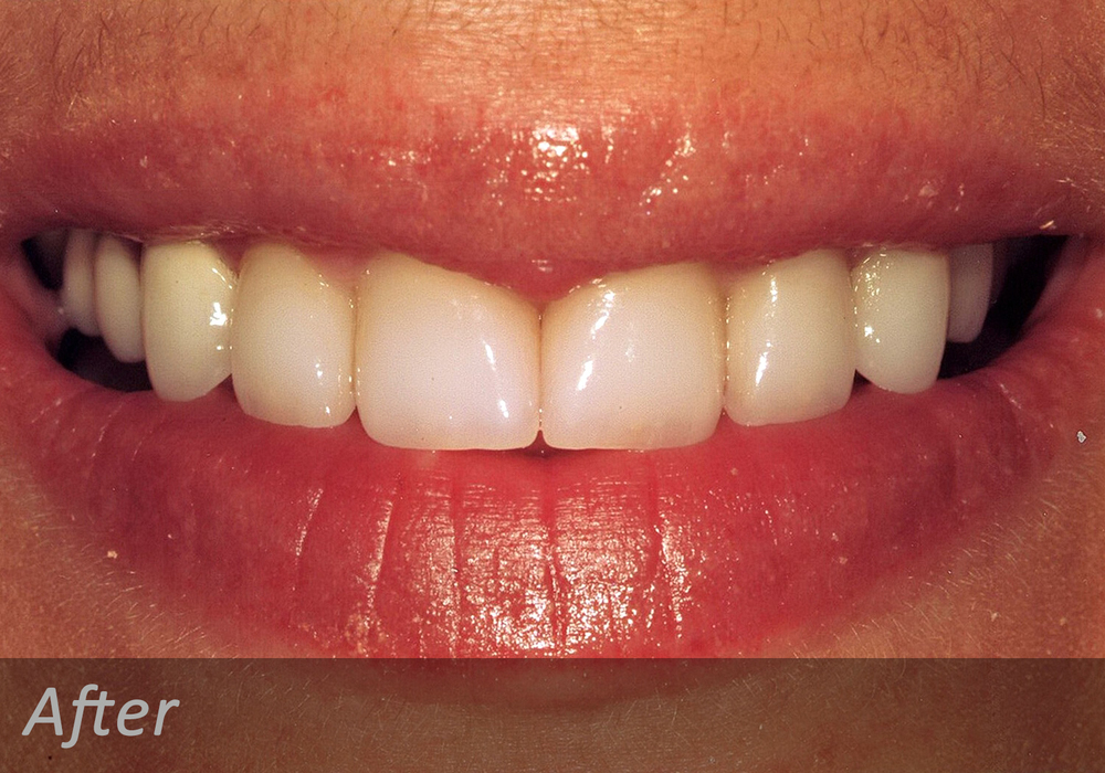 NW Dental - 044-3.jpg
