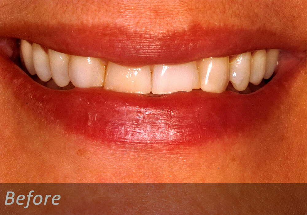 NW Dental - 046-1.jpg