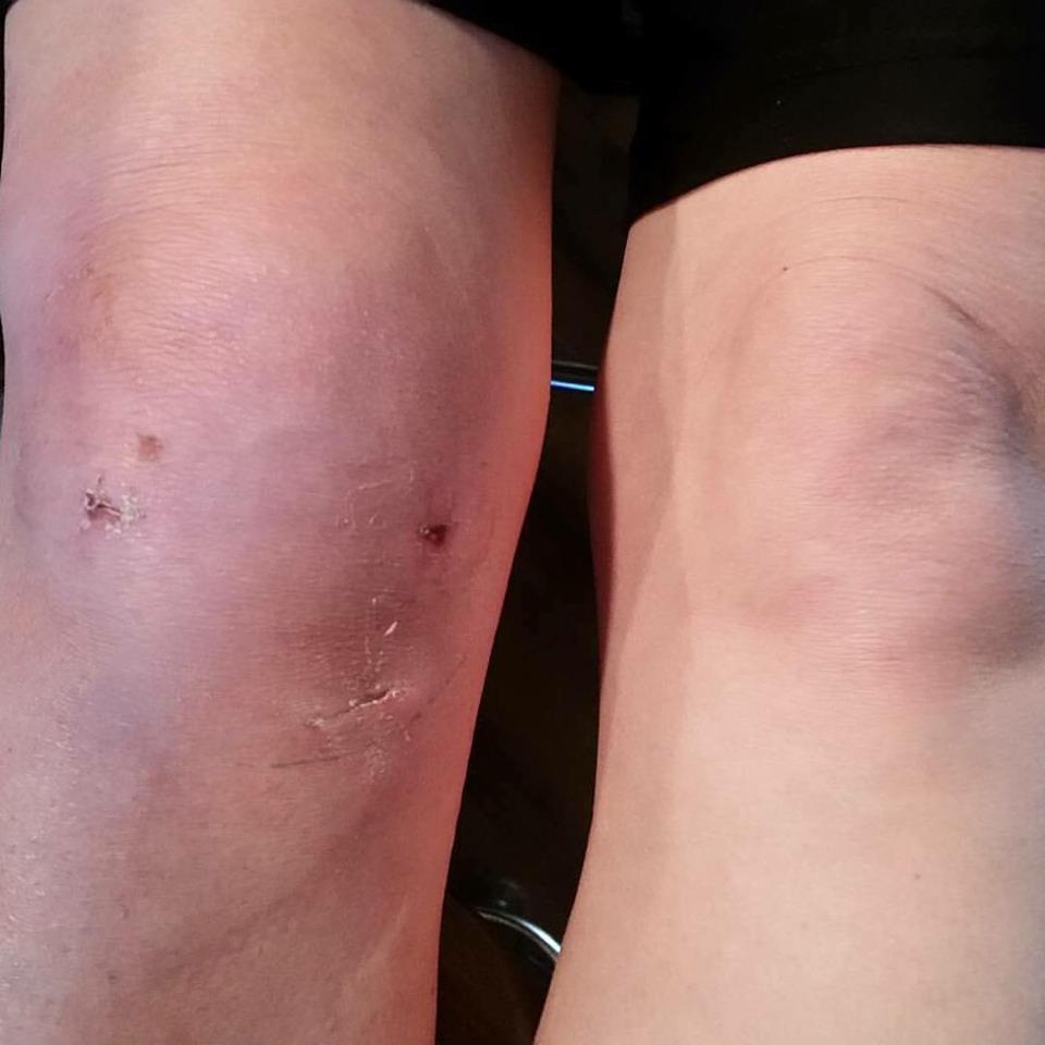 Knee surgery.jpg