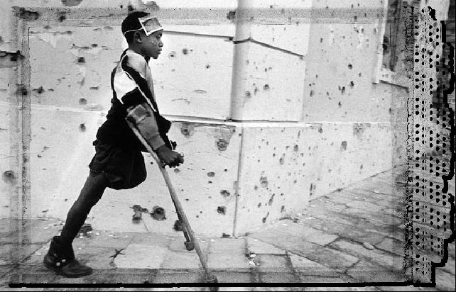 angolan-landmine-survivor