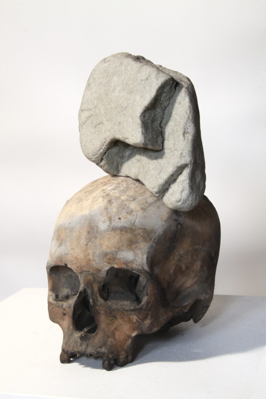 Stone on head /   Stein auf Kopf    (Front view / Vorderansicht )