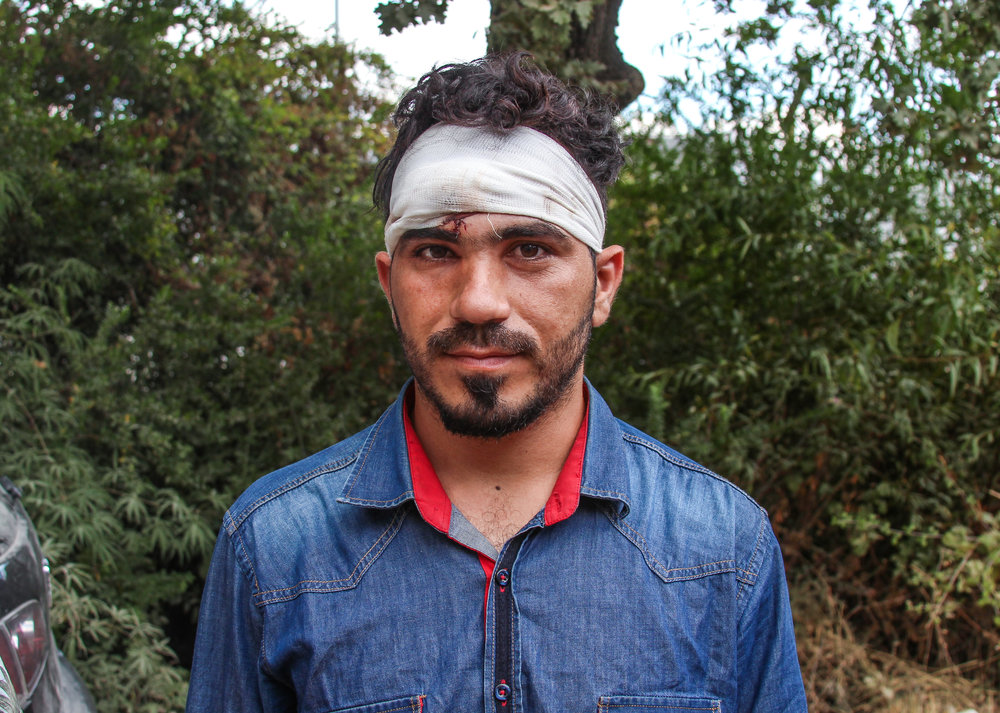 "A Syrian migrant sports fresh bandages after allegedly being beaten by Greek police in the Moria Refugee Camp. Countless others were also injured in a riot that destroyed over 60% of the facility. The riots were initiated by refugees due to internal racial disputes and the endless delay in immigration processing. ""We don't want their food, we don't want their water, we just want to leave,"" one Pakistani migrant said. This entrapment is far from over, with the majority of European countries refusing to accept refugees at this time. ""We left our countries to escape war. Now we are forced to live like this,"" an injured Nigerian migrant explained."