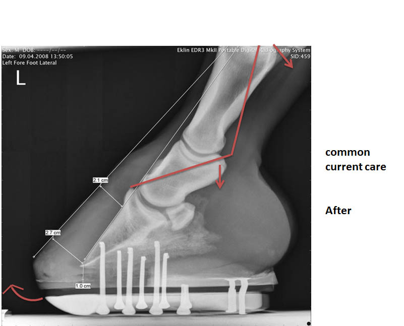Supposition: Subluxation of pastern and fetlock joints by common care practices = limb misalignment = the pursuit of lameness.