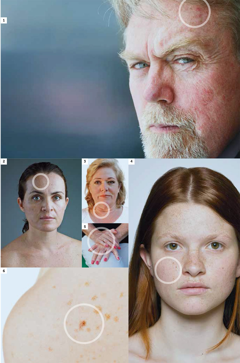 The deleterious effects of the sun are responsible for up to 90 per cent of skin aging. Pictured opposite, some early signs of photoaging include:  (1) sun-related keratosis; (2) pigmented spots; (3) deep wrinkles; (4) freckles; (5) age spots; (6) solar lentigines.